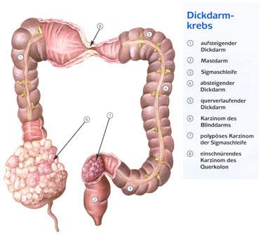 darmkrebs operation komplikationen