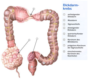 endstadium darmkrebs symptome